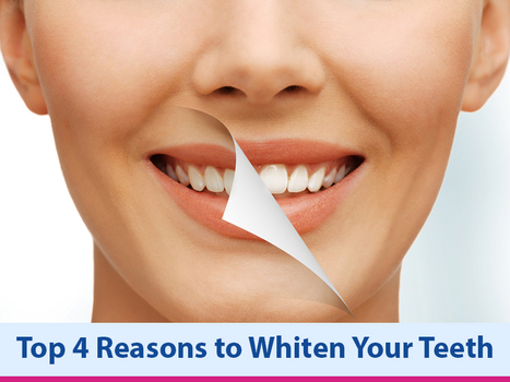 Top 4 Reasons to Whiten Your Teeth | Dental health conditions, Treatments & remedies. | Scoop.it