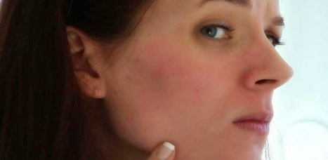 How to remove Redness on Face   Beauty Tips   Scoop.it