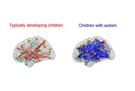 Social Symptoms In Autistic Children Could Be Caused By Hyper-connected Neurons - Science News - redOrbit | Brain-1 | Scoop.it