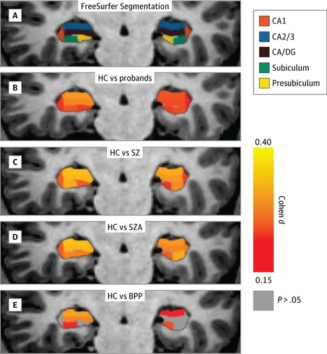 Altered Hippocampus a Key Player in Psychotic Disorders: Medial Temporal Lobe and Hippocampal Subfields | Social Neuroscience Advances | Scoop.it