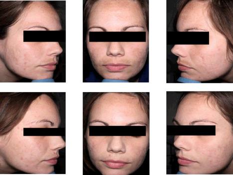Evaluación de la severidad del acné y su impacto en adultos jóvenes.   Medicina Estética   Scoop.it