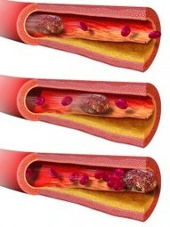 What is the process of blood clotting and is it really good or bad | Health Care Tips | Scoop.it