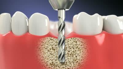 Dental Implant Clinic in Australia | Dental implant treatment | Scoop.it
