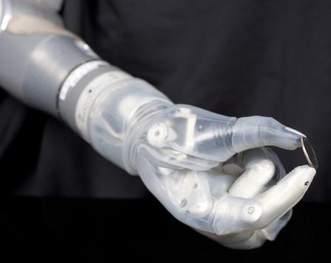 Une prothèse de bras 'bionique' bientôt commercialisée aux USA | Remembering tomorrow | Scoop.it