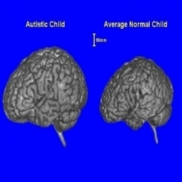 Boys with autism have a bigger brain | Cosmos Magazine | Science by Arancha | Scoop.it
