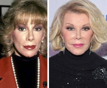 Joan Rivers Plastic Surgery Before & After | Celebrity Plastic Surgery | Scoop.it