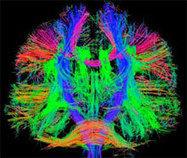 Psychiatric Neuroimaging Division - Massachusetts General Hospital, Boston, MA   Social Neuroscience Advances   Scoop.it