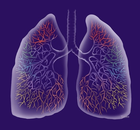 Biological Fluke Breathes New Life into Lung Transplants | Pulmonary Fibrosis News | Scoop.it