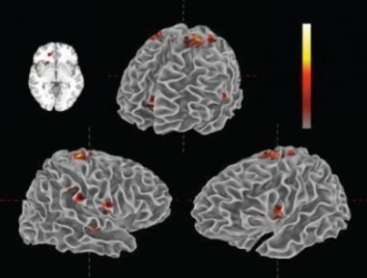 Study links emotional and neural responses to musical performance | Bounded Rationality and Beyond | Scoop.it