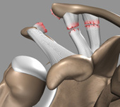 Shoulder Surgery | ACL Separation | Westchester New York | AC Joint | AC Joint Separation | Steven Struhl MD | Scoop.it