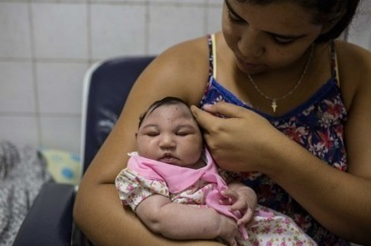 Zika tied to major eye defects in babies with microcephaly, study finds | Sustain Our Earth | Scoop.it
