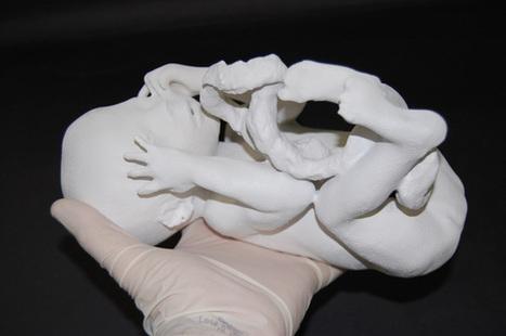 New Scientist TV: 3D fetus fly-through peers inside abnormal bodies | Amazing Science | Scoop.it