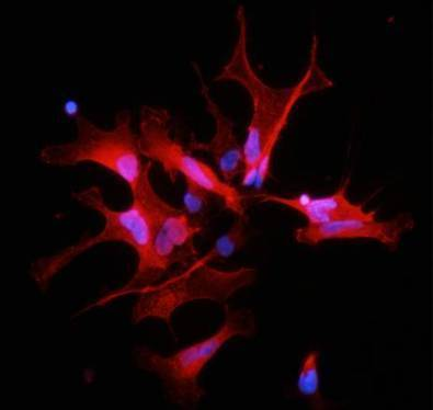 Scoperta la 'droga' dei tumori - Biotech - Scienza&Tecnica - ANSA.it | Browsing around | Scoop.it