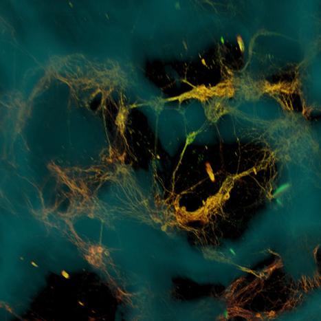 Bioengineers create functional 3-D brain-like tissue | Physics+neuroscience+cancer+imaging process | Scoop.it