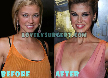 Adrianne Palicki Plastic Surgery Before and After Boob Job | Celebrity Plastic Surgery | Scoop.it