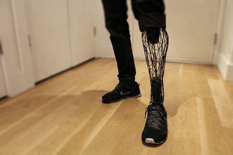 L'impression 3D pour créer des prothèses esthétiques et abordables | Santé & Médecine | Scoop.it