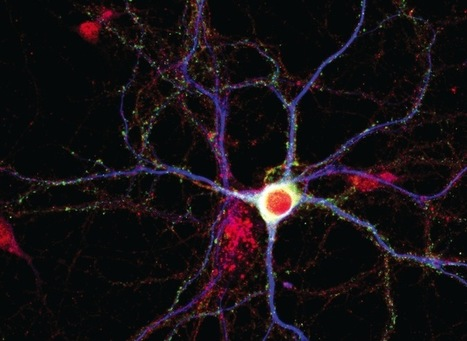 Genentech: A Potential New Pathway for Parkinson's Disease | Social Neuroscience Advances | Scoop.it