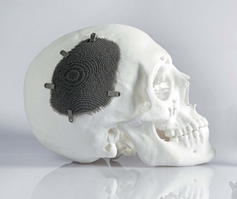 Argentinan patient leads normal life with 3D printed cranial implant | 3D_Materials journal | Scoop.it