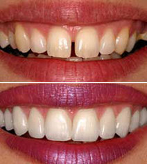 How to Whiten Your Teeth | Healthy Recipes and Tips for Healthy Living | Scoop.it
