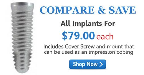 Dental Implant Technologies   Dental Implant Technologies   Scoop.it