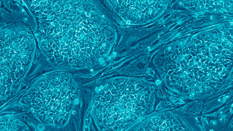 A Human Stem Cell Has Been Cloned For the First Time | Shoukhrat Mitalipov of Ore. Health & Science University | #ALSAWARENESS #PARKINSONS | Scoop.it