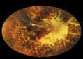 DURHAM: Duke researchers will offer 'bionic eye' for the blind | Science/Technology | NewsObserver.com | Tech n Tech | Scoop.it