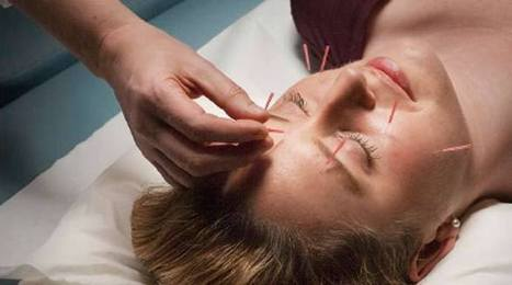 What do I Look for in an Acupuncturist?   Acupuncture   Scoop.it