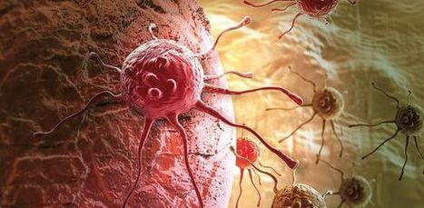 Cancer vaccines market will triple to $7.5B by 2022, report says   Biotech Pharma Innovation in Immuno-Oncology & beyond. Cancer - Immunology - Immunotherapy.   Scoop.it