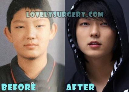 Lee Joon Gi Plastic Surgery Before and After Rhinoplasty Rumor | Celebrity Plastic Surgery | Scoop.it