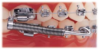 (EN) - Orthodontic Glossary | Campbell Orthodontics | Translation | Scoop.it