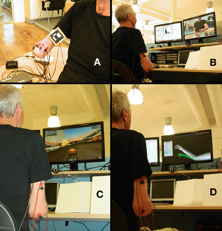 Treatment of phantom limb pain based on augmented reality and gaming | Medical Engineering = MEDINEERING | Scoop.it