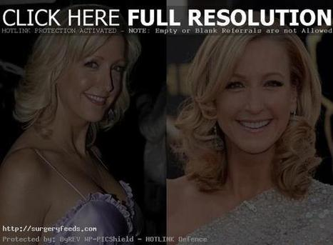 Lara Spencer Plastic Surgery Before and After Photos - Face | Plastic Surgery Before and After Photos | Scoop.it