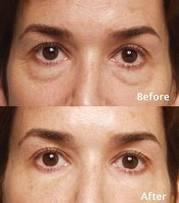 Cara Menghilangkan Kantung Mata Yang Menghitam | Herbal | Scoop.it
