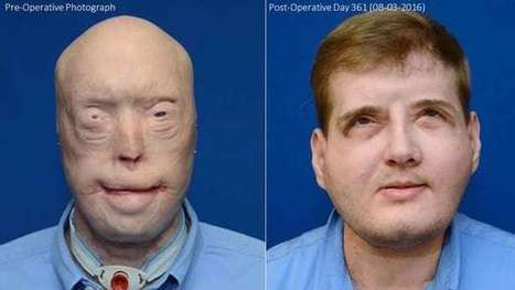 Face transplant gives ex-firefighter his life back | Longevity science | Scoop.it