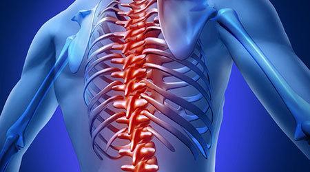 ما أعراض التهاب الفقرات المفصلي؟   منوعات   Scoop.it
