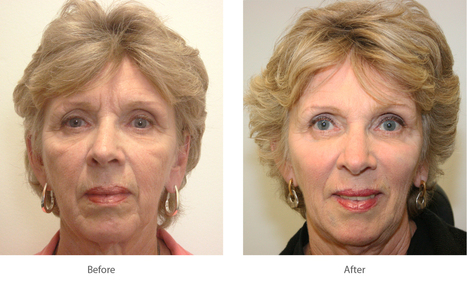 Juvederm, Restylane Philadelphia, Bala Cynwyd, PA, Voorhees, NJ | Drs. Cohen and Swartz | Scoop.it