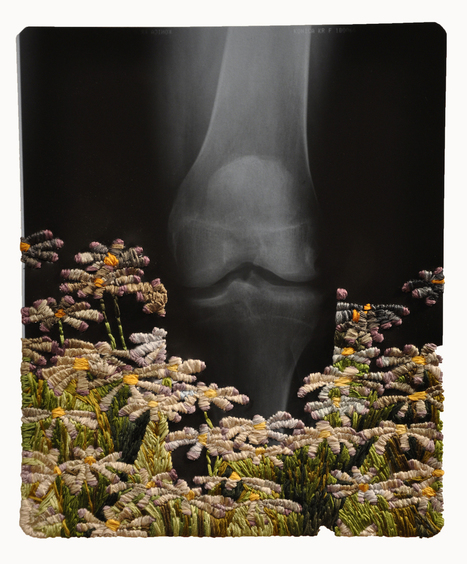 Playfully #Embroidered #X-Ray Film by Matthew Cox. #art | Luby Art | Scoop.it