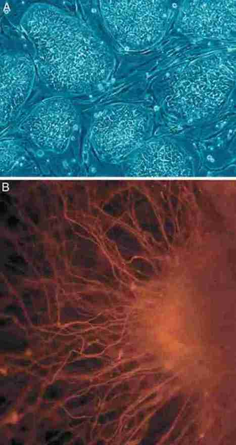 Embryonic Stem Cells Offer Treatment Promise for Multiple Sclerosis | Neuroscience | Scoop.it