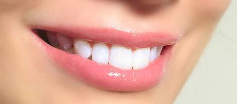 Dentist | implants | Scoop.it