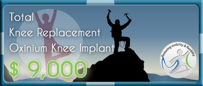Looking for the Top Oxinium Total Knee Replacement Surgery in India | Unilateral and Bilateral Total Knee Replacement Surgery | Scoop.it