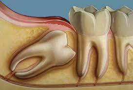 جراحة ضرس العقل.. الدواعي والمخاطر | Dental Laboratory Safety | Scoop.it