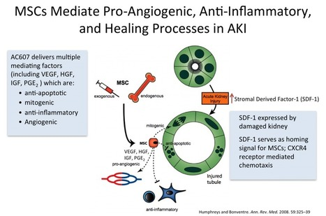 AC607 (MSCs) for the Treatment of Acute Kidney Injury   Cell Therapy Industry   Scoop.it