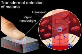 Vapor nanobubbles rapidly detect malaria through the skin   Sustain Our Earth   Scoop.it