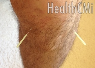 Acupuncture Stops Knee Pain - New Research - HealthCMi | Acupuncture News | Scoop.it