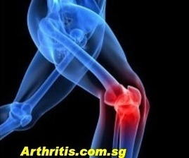 Know the facts about Arthritis | Rheumatologists and Orthopaedic Surgeons | Scoop.it