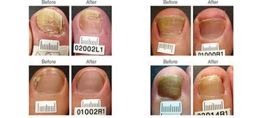 About The Procedure | | Foot facts | Scoop.it