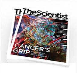 Microglia Tamp Down Neurogenesis   The Scientist Magazine®   Neuroscience: Alzheimer's disease   Scoop.it