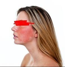 Best concealer for rosacea-prone skin. | Beauty and makeup | Scoop.it