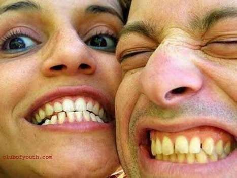 Top Homemade Secret Remedies to Whiten Your Yellow Teeth | Welcome To Clubofyouth | Welcome To Clubofyouth | Scoop.it