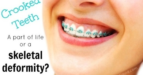 Tired Of Crooked Teeth? Try Braces For Adults!   Dental Care   Scoop.it